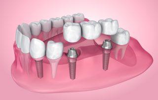 Dental Bridges Explained
