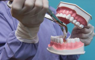 What You Should Know Before Getting a Tooth Extraction