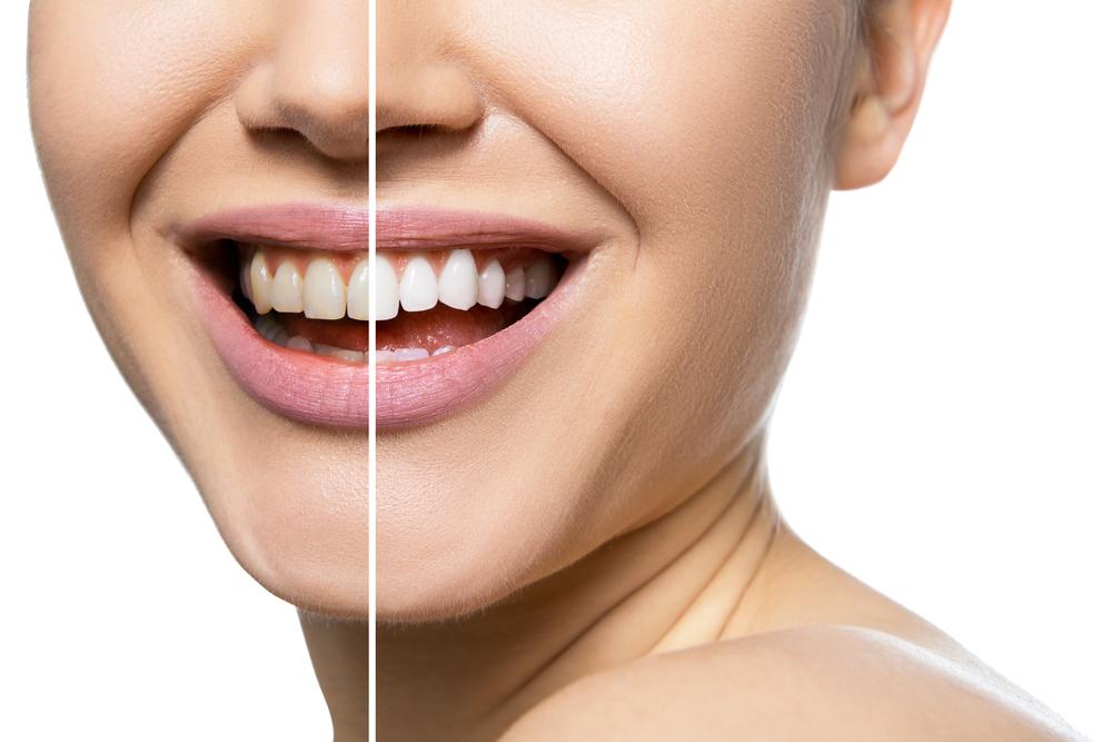 Teeth Whitening Explained
