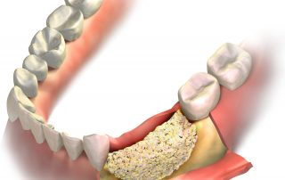 Everything You Need to Know About Bone Grafting for Dental Implants