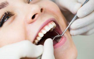 Dental Fillings in San Diego