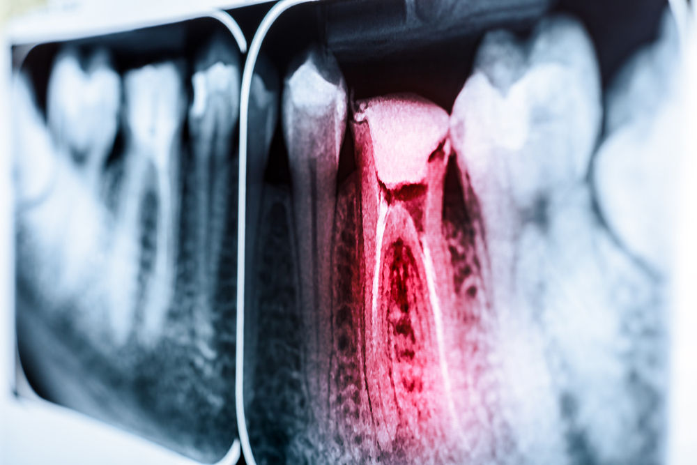 X-Ray of Tooth Canal (Tooth Decay)