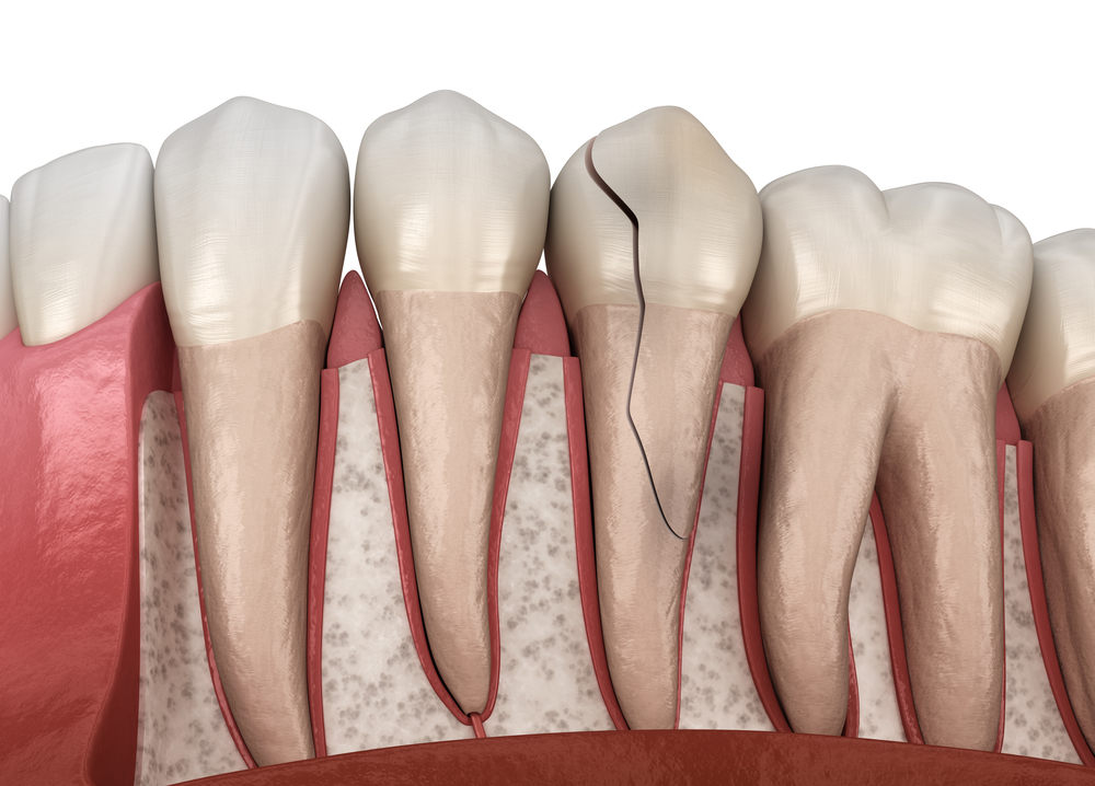 Cracked Tooth (Can A Cracked Tooth Heal On Its Own)