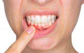 The Dangers of Untreated Gum Disease